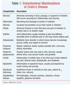 Manifestations of Crohn's disease