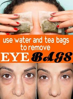 Use Water and tea bags to remove Eye Bags. www.societyscars.com
