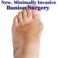 The Drs: New Bunion Surgery Leaves Minimal Scarring & No Recovery Time