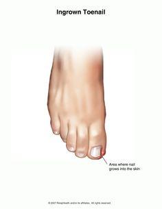 how to cut ingrown toenail at home