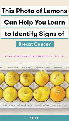 Breast cancer is incredibly common in America. Symptoms of breast cancer aren't always easy to spot. This photo of lemons is being passed around as a helpful tool to spot different types of lumps, bumps, and shapes. You also need to look out for dimpling, leakage, vein growth, and more. Self-examination is key, so speak up if you notice any of the following.