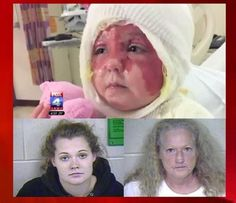 """Mo. mom accused of pouring scalding water and industrial-strength bleach on 2-year-old daughter  -  While being treated for her second-degree burns at the hospital, the toddler told investigators """"Mommy is mean. Mommy did it."""""""