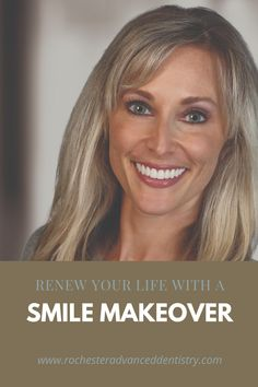 A smile makeover has more of an effect on your life than you'd imagine. It an affect the relationships you make, the jobs you get, and your self confidence along the way. dental veneers, tooth veneers, smile makeover before and afters, face lift, non surgical face lift, virtual consult, smile virtual, dental virtual consult, Veneers Teeth, Dental Veneers, Make Smile, Your Smile, Misaligned Teeth, Smile Makeover, Cosmetic Dentistry, Dental Implants, Look In The Mirror