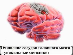 Очищение сосудов головного мозга очень важная процедура, которая способна значительно улучшить ваше самочувствие при ряде заболеваний, от...
