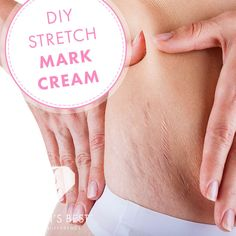 Find out why a stretch mark cream is the best first step to try to eliminate stretch marks on your body. Stretch Marks On Thighs, Stretch Mark Cream, Diy Beauty, Beauty Hacks, Beauty Tips, Beauty Products, Stretch Mark Remedies, Alcohol Free Toner, Pregnancy Health