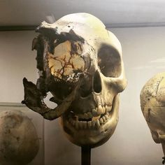 Massively damaged Skull- person survived damage for 10+ years before death! Mutter Museum