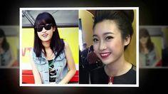 Tin Tức Sao Việt - Hoa hậu Đỗ Mỹ Linh bị tố từng sửa răng