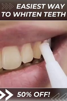 OFF Today 😍 Flawless Teeth Whitening Pen removes all unwanted stains and makes your teeth crystal white without causing any discomfort - it's suitable even for sensitive teeth! 😍 tips 😍 Teeth Whitening Pen 😍 Beauty Care, Beauty Skin, Beauty Hacks, Face Beauty, Beauty Makeup, Teeth Care, Skin Care, Natural Teeth Whitening, Whitening Kit