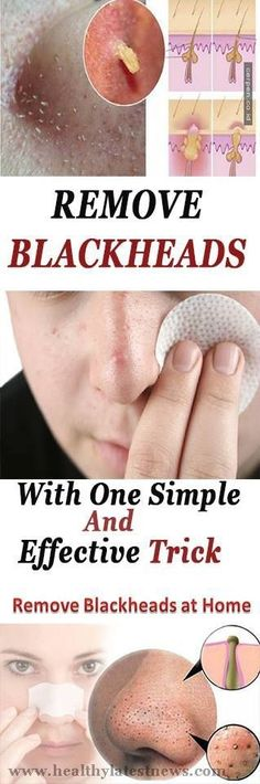 Remove Blackheads With One Simple And Effective Trick #blackheads #tricks #beauty #women