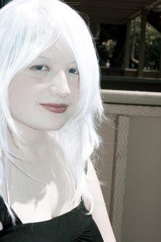 beauty albino woman