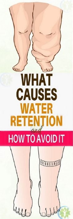 WHAT CAUSES WATER RETENTION AND HOW TO AVOID
