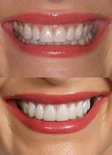 porcelain-veneers-shape-color-bl1-bl2-bl3-empress-emax ...