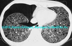11. その他の肺疾患 症例105:肺リンパ脈管筋腫症 CT,『コンパクトX線アトラスBasic 胸部単純X線写真アトラス vol.1 肺』 Radiology