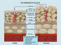 How to combat cellulite. I like this illustration also because it actually SHOWS how cellulite forms.