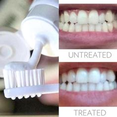 Here at Dental Associates, we offer various teeth whitening options. We offer a take-home whitening kit, which uses a custom tray fitted to your mouth filled with a whitening gel…all within the comfort of your own home! We also offer Boost in-office teeth Ap 24 Whitening Toothpaste, Teeth Whitening Remedies, Natural Teeth Whitening, Whitening Kit, Skin Whitening, Nuskin Toothpaste, Nu Skin, Pole Dancing, White Teeth