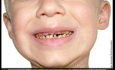 O açúcar pode se tornar um perigo para a saúde dos dentes das crianças. De acordo com informações do site DailyMail, os pequenos não têm o hábito de escovar os dentes se não forem obrigados a fazê-lo, e a falta de cuidado com a saúde bucal pode trazer efeitos extremamente devastadores para os dentes, como você pode ver nas imagens a seguir!