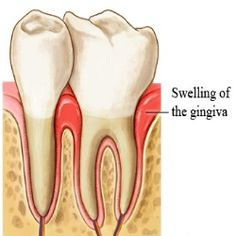 Home Remedies for Swollen Gums - Natural Treatments & Cure For Swollen Gums | Search Home Remedy