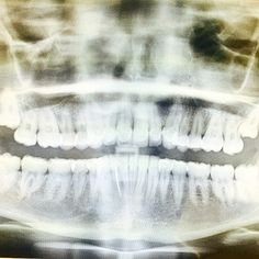 "@mileycyrus's photo: ""Ya wanna see my whaaaaaaaaaaaa?!?! Yaaaaaa yaaaaaa grillll  yaaaaaa yeaaaaaaa yeaaaaaa grillllllll "" #mileycyrus #dentist"