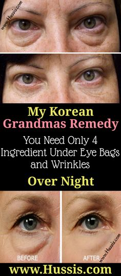 My Korean Grandmas Remedy You Need Only 4 Ingredient To Eliminate Under Eye Bags and Wrinkles Over Night Beauty Hacks For Teens, Luscious Hair, Under Eye Bags, Home Remedies For Hair, Natural Beauty Tips, Natural Makeup, Natural Hair, Belleza Natural, Trains