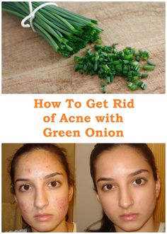 Green onions is a miracle of nature. We get rid of colds, cardiovascular problems and metabolism, helping even in the case of diabetes. Few know how good green onion skin problems and acne. See how get rid of acne with green onions. See what is beneficial Scar Removal Cream, Acne Scar Removal, Get Rid Of Cold, How To Get Rid Of Acne, Anti Aging Skin Care, Natural Skin Care, Diabetes, Back Acne Treatment, Baby Acne