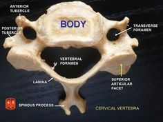cervical vertebrae of horse - Yahoo Image Search Results