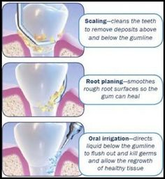 Dentaltown - Scaling and root planing, non-surgical periodontal therapy, or deep cleaning, is the process of removing dental plaque and calculus from beneath the gums which causes inflammation.