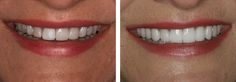 Before and After If you are living in and having problem? Patrick J. Broome at 310 5268 today for an interview!If you are living in and having problem? Patrick J. Broome at 310 5268 today for an interview! Invisalign, Dental Bonding, Cosmetic Dentistry Procedures, Laser Dentistry, Teeth Straightening, Dental Veneers, Porcelain Veneers, Smile Makeover, Girl Blog