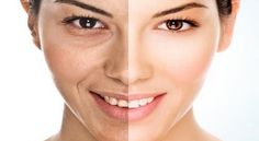 Remove Laugh Lines Naturally with These Simple Tips | | Health Digezt