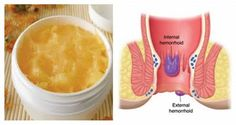 Hemorrhoids are one of the most common diseases. According to statistics, of the world population suffers from hemorrhoids. This phenomenon equally occurs in men and women. We present a recipe for preparing a homemade ointment to treat hemorrhoids. Natural Treatments, Natural Cures, Natural Healing, Home Remedies For Hemorrhoids, Anti Inflammatory Herbs, Getting Rid Of Hemorrhoids, Home Treatment, Home Remedies, Diet