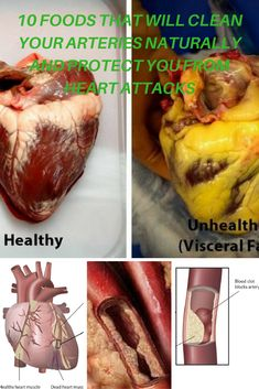 Cardiovascular disease is among the most harmful illness of our time, which is why we need to do anything we can to prevent it. The illness is generally triggered by obstructed arteries which disrupt appropriate blood circulation to the heart. The primary aspects of the cardiovascular disease are tension, no exercise, and unhealthy diet plan, however, it can be solved with the 10 following foods which will clean your arteries and preserve your cardiovascular health.