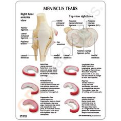 complex meniscus tear - Bing Images