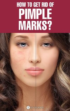 How to Get Rid of Pimple Marks? An average pimple might stay for 5-7 days, but the mark it leaves behind, there's no guarantee as to when it goes. It could even stay for forever! Let us tell you how you can get rid of these confidence-killing scars. #Beauty #BeautyTips #Pimples #Acne #AcneScars #PimpleMarks #PimplesOnForehead Pimple Marks, Acne Marks, Beauty Care, Beauty Hacks, Beauty Tips, Pimples On Forehead, Natural Oils For Skin, How To Get Rid Of Pimples, How To Grow Eyebrows