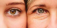 Karbonat Kullanın ve 10 yaş gençleşin - Bilge Cafe Creme Anti Age, Anti Aging Eye Cream, Best Eye Cream, Anti Aging Tips, Best Anti Aging, Anti Aging Skin Care, Ride Du Lion, Droopy Eyelids, Beauty Hacks For Teens