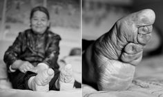 103 years after foot binding was banned. 50 women today