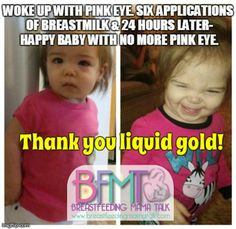 Breastmilk helped with this little girls pink eye!