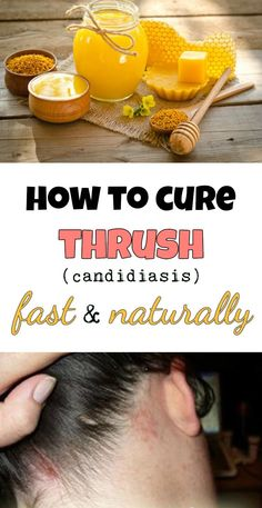 How to cure thrush (candidiasis) fast and naturally