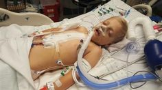 Ohio boy with heart in wrong place breathes freely for first time after 3D printing-assisted surgery