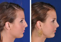 View before and after photos of actualcosmetic surgeryandoral/maxillofacial surgerypatients at Robinson Cosmetic Surgery, LLC.