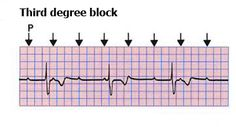 Third degree (complete) AV Block: Occurs when no P waves conduct to the ventricles. There will be no relationship between P-wave (atrial) rate and QRS complex (ventricular) rate. QRS complexes tend to be abnormally shaped due to abnormal spreading of depolarisation across the ventricles.
