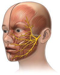 Trigeminal Neuralgia Muscle Anatomy, Body Anatomy, Human Anatomy, Tmj Headache, Headache Relief, Nerf Facial, Glossopharyngeal Neuralgia, Trigeminal Neuropathy, Facial Anatomy