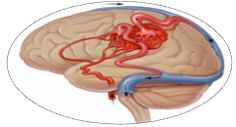 Gamma Knife Surgery India - A Sophisticated Treatment for Arteriovenous malformation