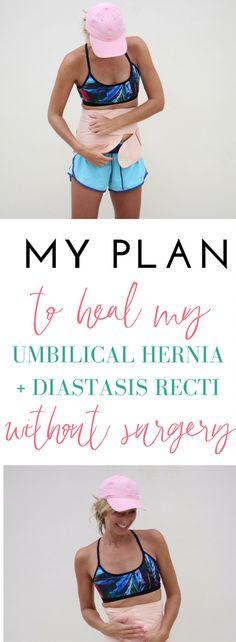 My Plan To Heal Umbilical Hernia + Diastasis Recti with out Surgery Pregnancy pregnancy hernia Hernia Exercises, Diastasis Recti Exercises, Diastasis Recti Repair, Healing Diastasis Recti, Second Pregnancy, Pregnancy Signs, Baby Workout, Pregnancy Workout, Umbilical Hernia Repair