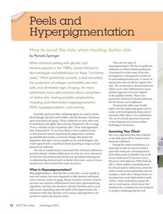Peels and hyperpigmentation
