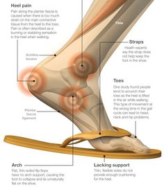 The Effects of Flip Flops on Your Body   memolition