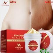 Maternity cream for stretch marks and scar removal. High Quality Smooth Skin Cream For Stretch Marks Scar Removal To Maternity Skin Repair Body Cream Remove Scar Care Postpartum. Skin Smoothing Cream, Skin Cream, Eye Cream, Stretch Mark Cream, Stretch Marks, Fat Burning Cream, Scar Removal Cream, Smooth Skin, Dry Skin
