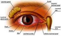 Dry eyes occur when the tear glands ( Lacrimal Glands ) don't produce enough tears, the ducts are blocked or the tears evaporate too quickly due to composition or external conditions