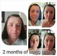 Luminesce Rejuvenation Serum amazing results! Contact me #skincare http://www.lyndseymcgageless.jeunesseglobal.com/