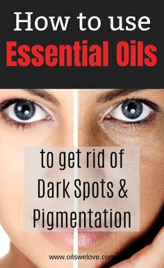 What are the best essential oils for dark spots excessive pigmentation and uneven skine tone? Learn how to use them properly. Lighten Dark Spots, Brown Spots On Face, Lighten Skin, Veronica, Dark Spot Remover For Face, Castor Oil For Skin, Dark Spot Treatment, Essential Oils For Face, Skin Tightening Cream
