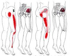 Piriformis Syndrome has several pain presentations.  My post explains...