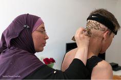 Perdre ses cheveux à la suite de traitements anticancéreux, c'est la crainte de nombreux malades. L'alopécie révèle à tous, la lutte du patient contre la maladie. Le tatouage au henné permet de surmonter cette étape difficile, en particulier chez les femmes qui se sentent dépossédées de leur féminité.
